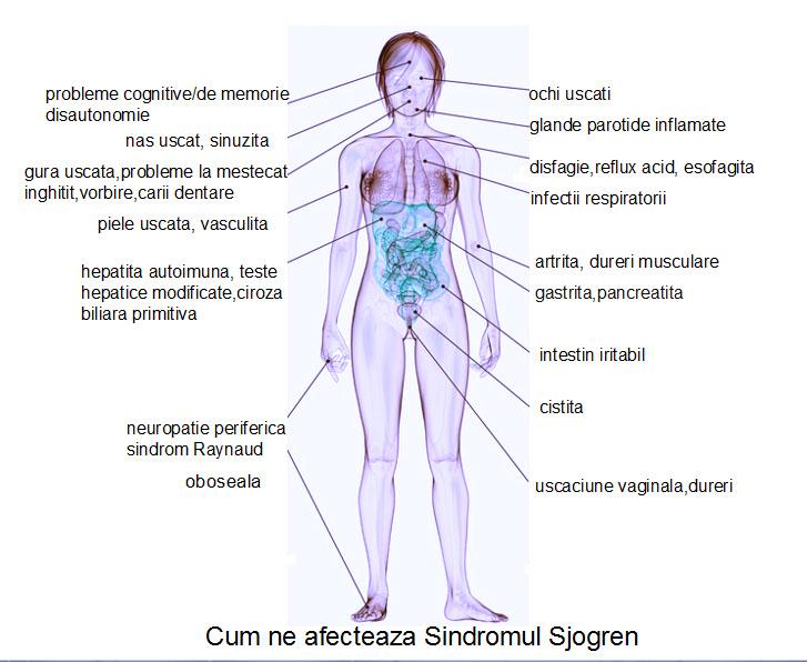 simptome-sjogren